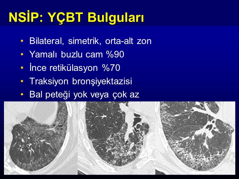 NSİP: YÇBT Bulguları Bilateral, simetrik, orta-alt zon Yamalı buzlu cam %90 İnce retikülasyon %70 Traksiyon bronşiyektazisi Bal peteği yok veya çok az