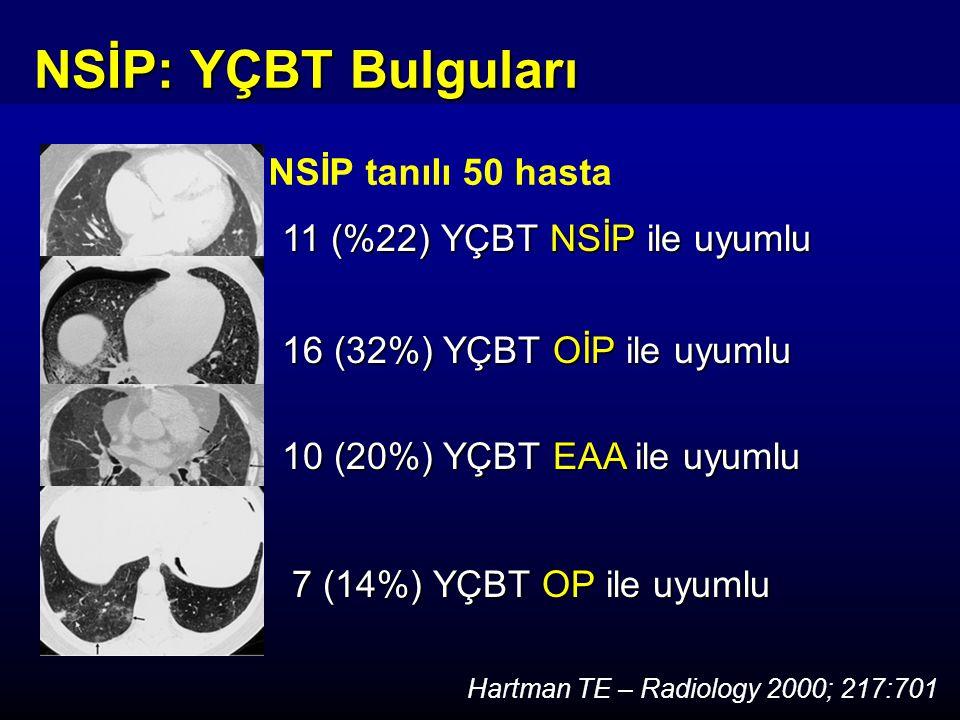 11 (%22) YÇBT NSİP ile uyumlu NSİP tanılı 50 hasta Hartman TE – Radiology 2000; 217:701 16 (32%) YÇBT OİP ile uyumlu 10 (20%) YÇBT EAA ile uyumlu 7 (14%) YÇBT OP ile uyumlu 7 (14%) YÇBT OP ile uyumlu NSİP: YÇBT Bulguları