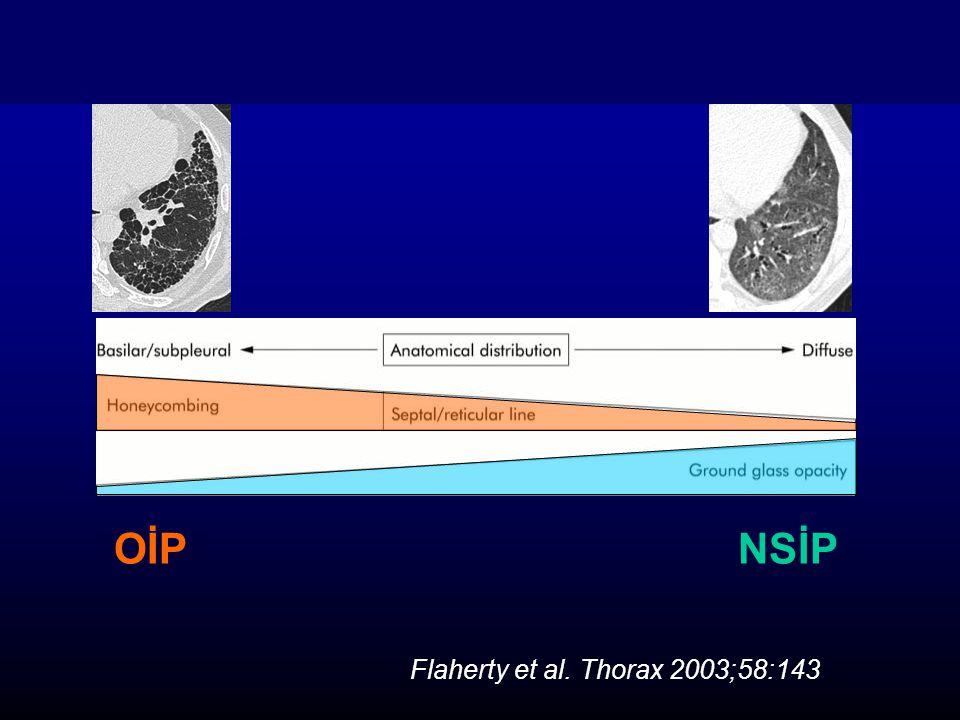 OİPNSİP Flaherty et al. Thorax 2003;58:143