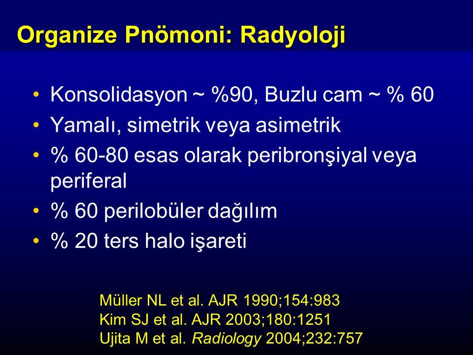 Konsolidasyon ~ %90, Buzlu cam ~ % 60 Yamalı, simetrik veya asimetrik % 60-80 esas olarak peribronşiyal veya periferal % 60 perilobüler dağılım % 20 ters halo işareti Müller NL et al.