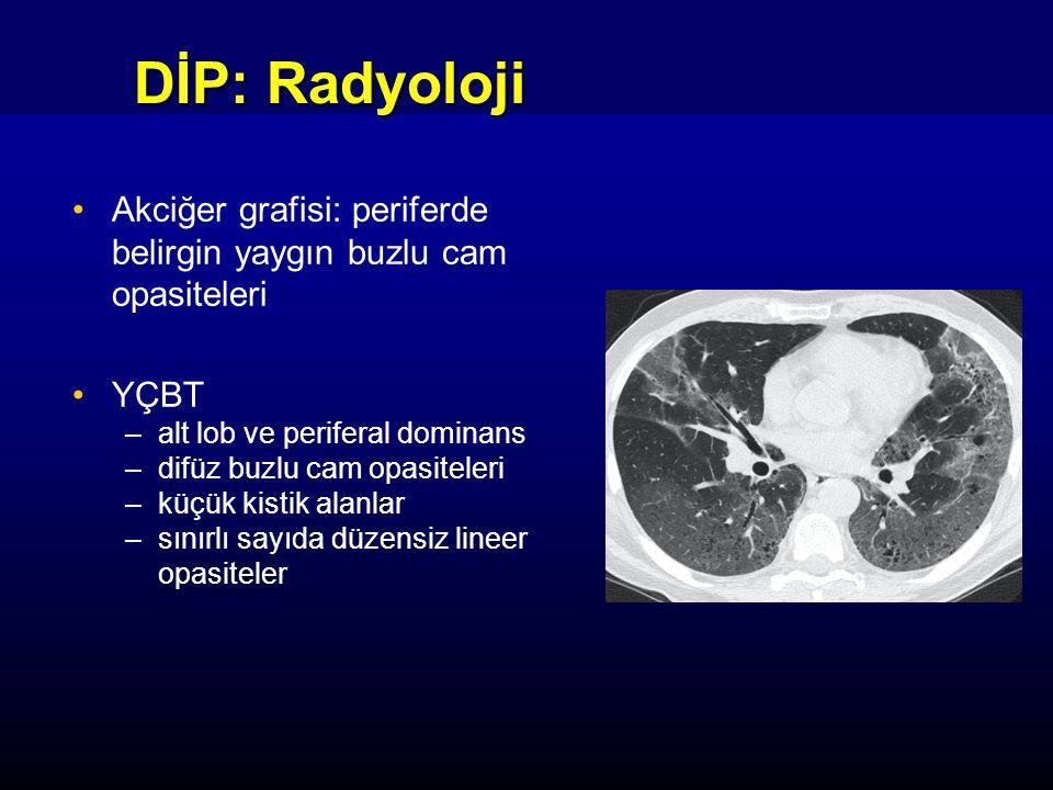 DİP: Radyoloji Akciğer grafisi: periferde belirgin yaygın buzlu cam opasiteleri YÇBT –alt lob ve periferal dominans –difüz buzlu cam opasiteleri –küçük kistik alanlar –sınırlı sayıda düzensiz lineer opasiteler