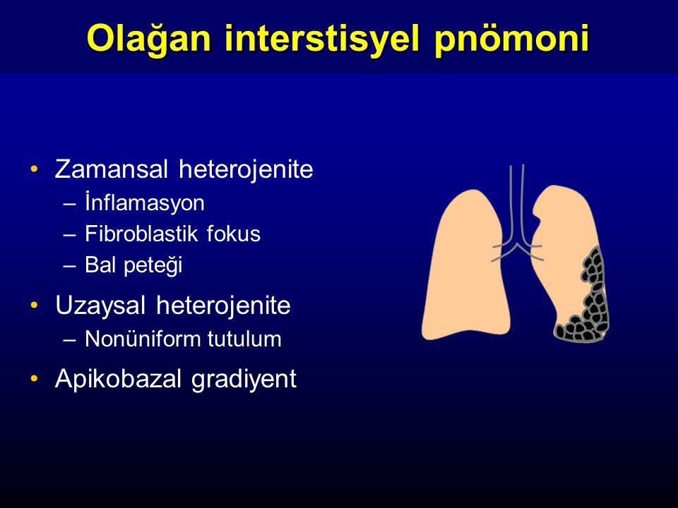 Zamansal heterojenite –İnflamasyon –Fibroblastik fokus –Bal peteği Uzaysal heterojenite –Nonüniform tutulum Apikobazal gradiyent