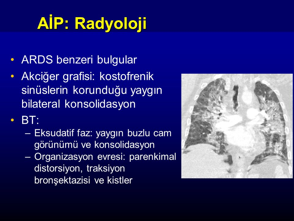 AİP: Radyoloji ARDS benzeri bulgular Akciğer grafisi: kostofrenik sinüslerin korunduğu yaygın bilateral konsolidasyon BT: –Eksudatif faz: yaygın buzlu cam görünümü ve konsolidasyon –Organizasyon evresi: parenkimal distorsiyon, traksiyon bronşektazisi ve kistler