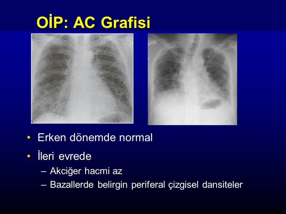 OİP: AC Grafisi Erken dönemde normal İleri evrede –Akciğer hacmi az –Bazallerde belirgin periferal çizgisel dansiteler
