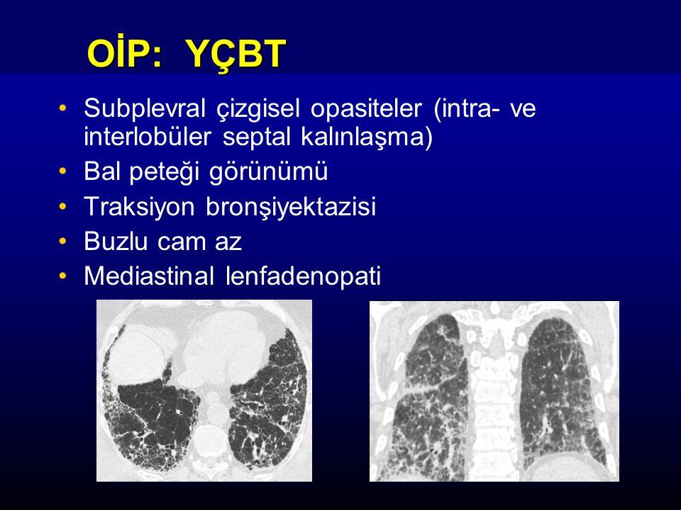 OİP: YÇBT Subplevral çizgisel opasiteler (intra- ve interlobüler septal kalınlaşma) Bal peteği görünümü Traksiyon bronşiyektazisi Buzlu cam az Mediastinal lenfadenopati
