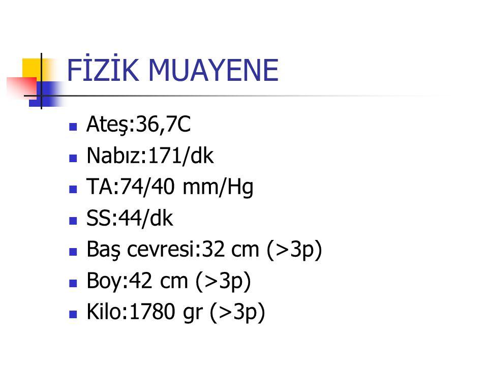 FİZİK MUAYENE Ateş:36,7C Nabız:171/dk TA:74/40 mm/Hg SS:44/dk Baş cevresi:32 cm (>3p) Boy:42 cm (>3p) Kilo:1780 gr (>3p)