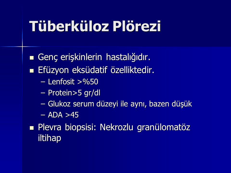 Tüberküloz Plörezi Genç erişkinlerin hastalığıdır. Genç erişkinlerin hastalığıdır. Efüzyon eksüdatif özelliktedir. Efüzyon eksüdatif özelliktedir. –Le