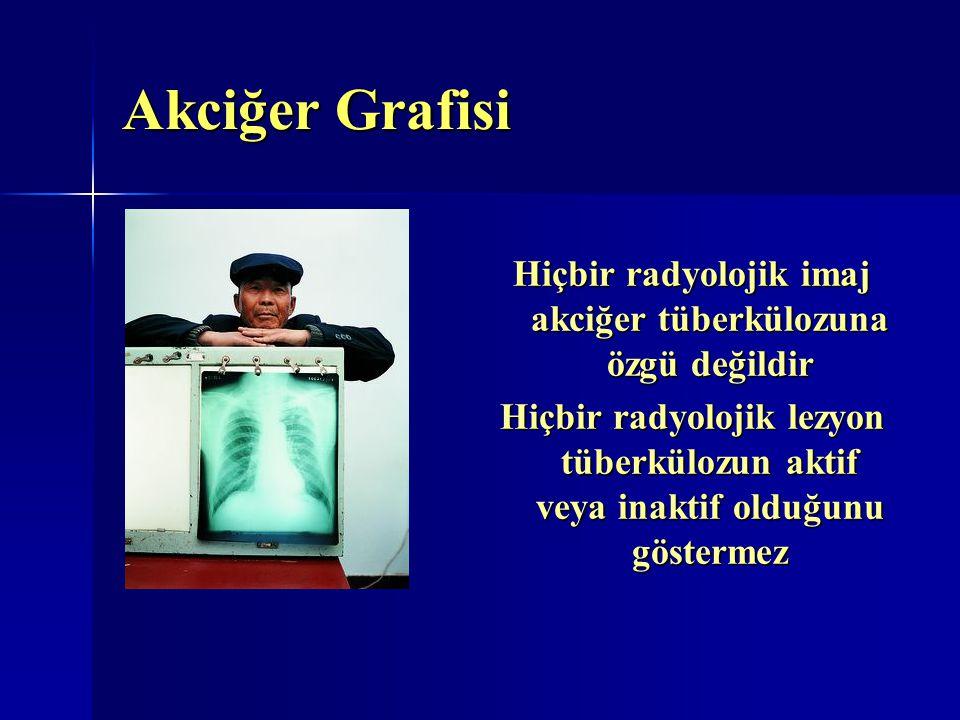 Akciğer Grafisi Hiçbir radyolojik imaj akciğer tüberkülozuna özgü değildir Hiçbir radyolojik lezyon tüberkülozun aktif veya inaktif olduğunu göstermez