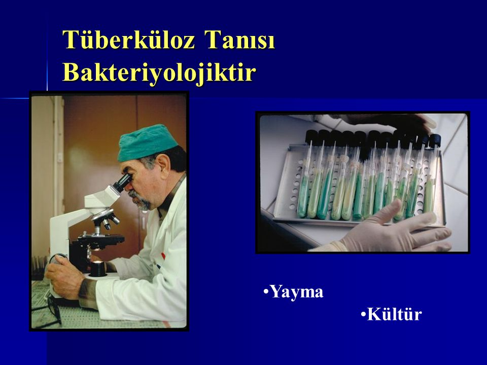 Tüberküloz Tanısı Bakteriyolojiktir Yayma Kültür