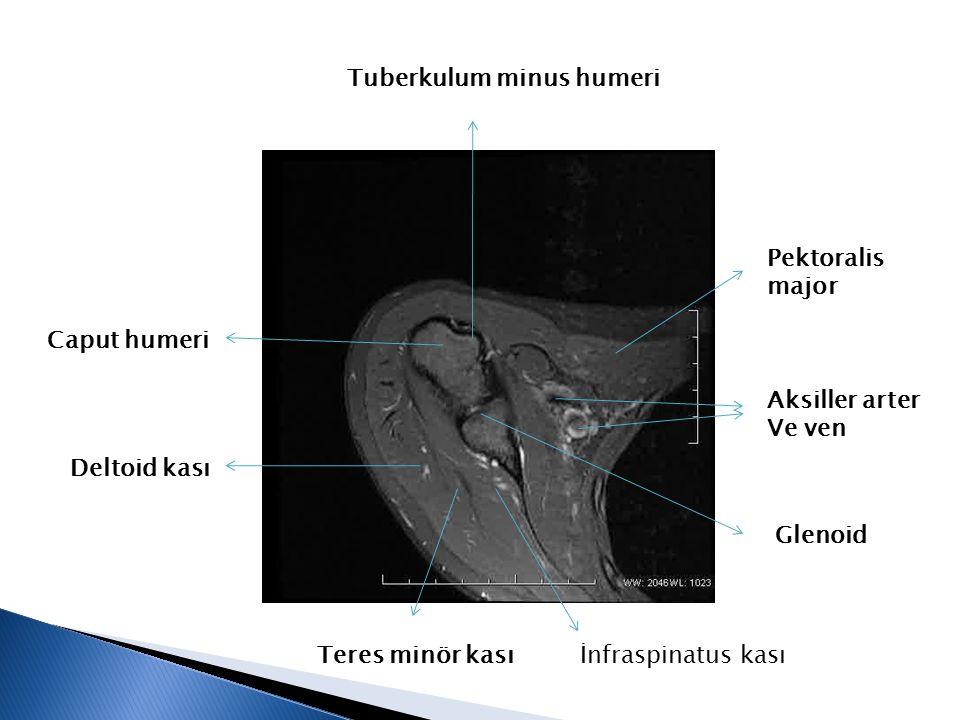 Pektoralis major Aksiller arter Ve ven Caput humeri Tuberkulum minus humeri Glenoid İnfraspinatus kasıTeres minör kası Deltoid kası