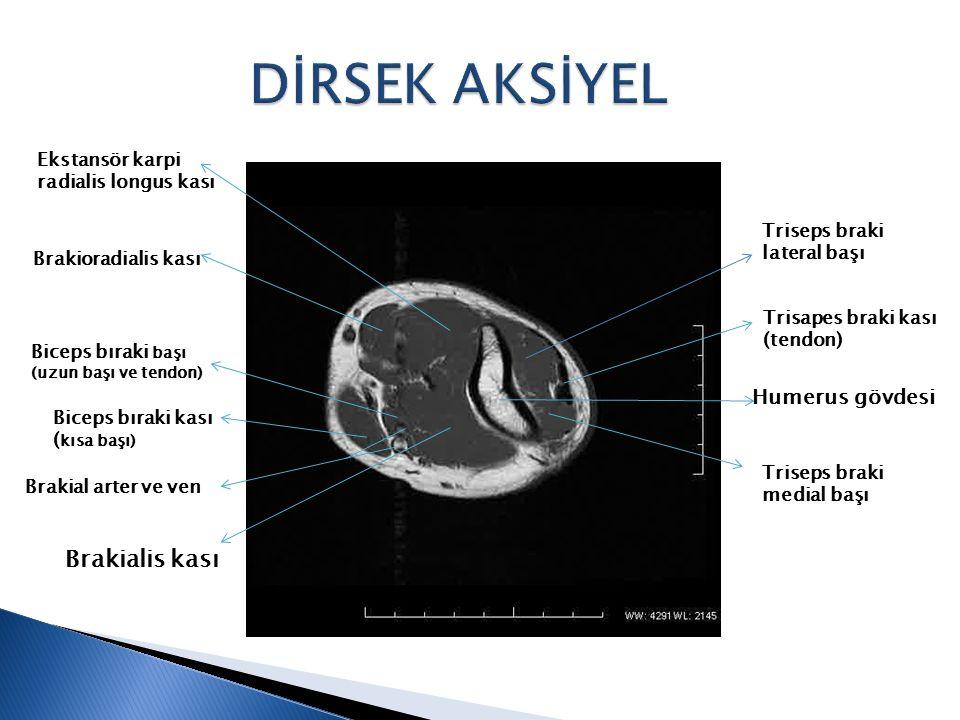 Humerus gövdesi Triseps braki lateral başı Trisapes braki kası (tendon) Triseps braki medial başı Brakialis kası Biceps bıraki başı (uzun başı ve tend