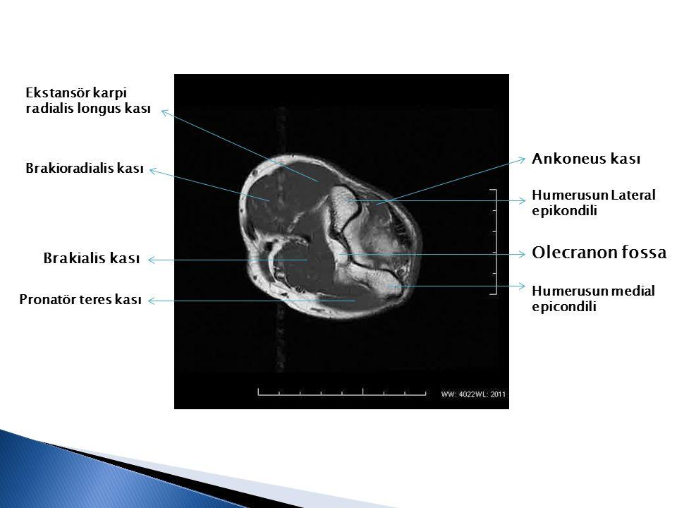Humerusun Lateral epikondili Olecranon fossa Humerusun medial epicondili Ankoneus kası Ekstansör karpi radialis longus kası Brakioradialis kası Pronat
