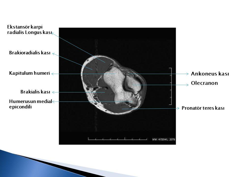Olecranon Ankoneus kası Kapitulum humeri Humerusun medial epicondili Ekstansör karpi radialis Longus kası Brakialis kası Pronatör teres kası Brakiorad