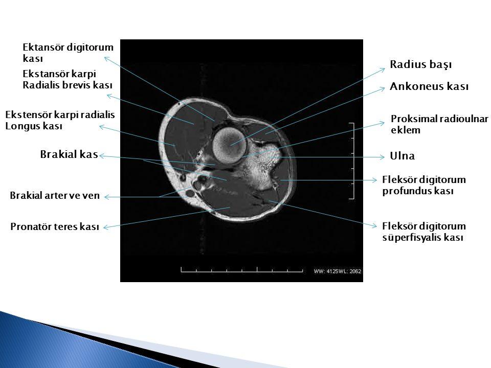 Radius başı Ankoneus kası Proksimal radioulnar eklem Ulna Fleksör digitorum profundus kası Fleksör digitorum süperfisyalis kası Pronatör teres kası Br