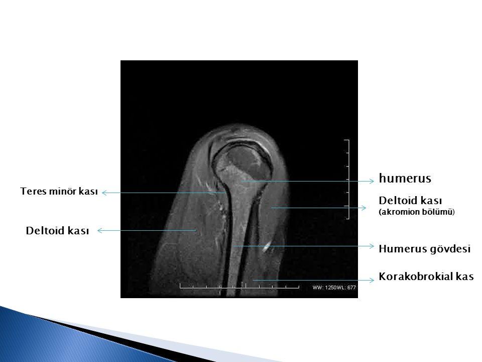 humerus Deltoid kası (akromion bölümü) Deltoid kası Humerus gövdesi Korakobrokial kas Teres minör kası