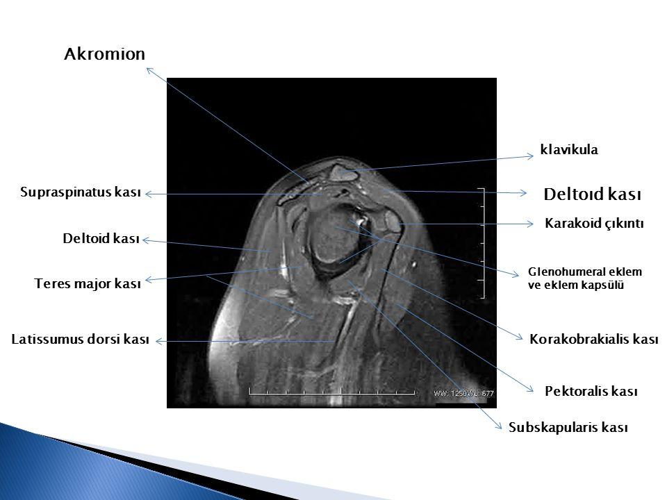klavikula Subskapularis kası Karakoid çıkıntı Glenohumeral eklem ve eklem kapsülü Korakobrakialis kası Supraspinatus kası Deltoid kası Pektoralis kası