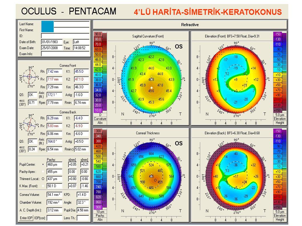 Sagital, koniyi iyi göstermiyor Yükseklik ve kalınlık haritaları ise simetrik Pakimetri ve Elevasyon Asimetrisi
