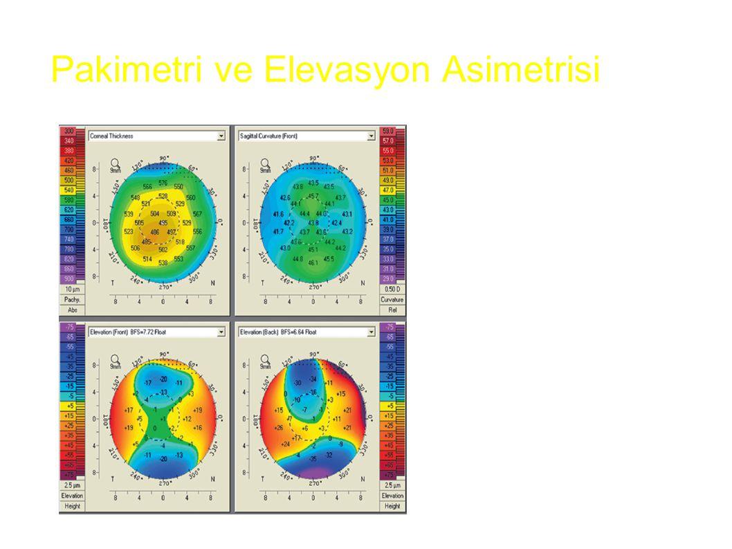 Sagital, ön ve arka yükseklik haritaları normal Kalınlık haritası anormal (korneanın en ince yeri tepede değil) Erken keratokonus? Pakimetri ve Elevas