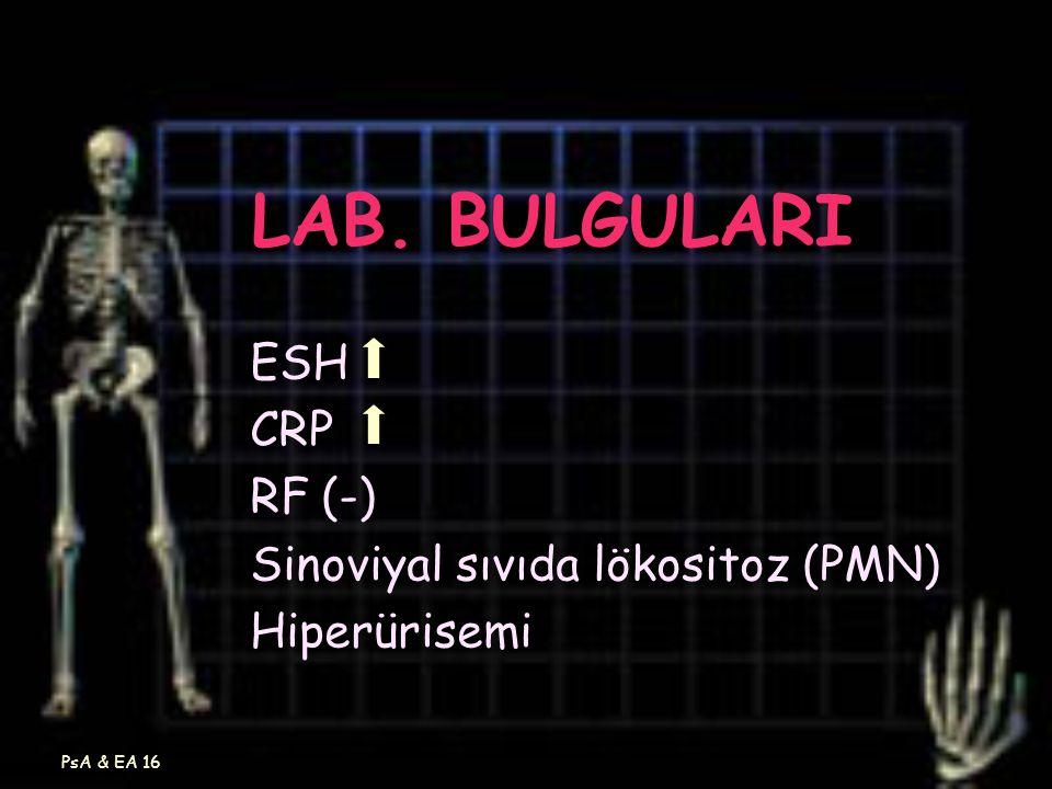 PsA & EA 16 LAB. BULGULARI ESH CRP RF (-) Sinoviyal sıvıda lökositoz (PMN) Hiperürisemi