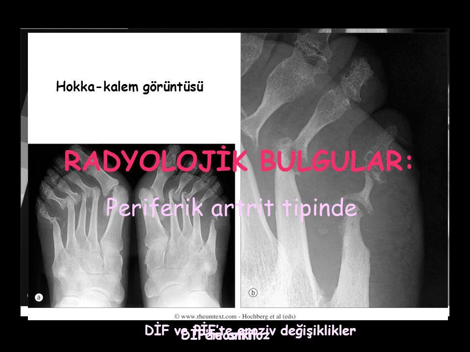 DİF ve PİF'te eroziv değişiklikler Periostit DİF'te ankiloz Hokka-kalem görüntüsü RADYOLOJİK BULGULAR: Periferik artrit tipinde
