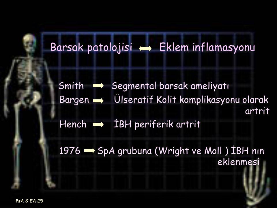 PsA & EA 25 Barsak patolojisi Eklem inflamasyonu Smith Segmental barsak ameliyatı Bargen Ülseratif Kolit komplikasyonu olarak artrit Hench İBH perifer