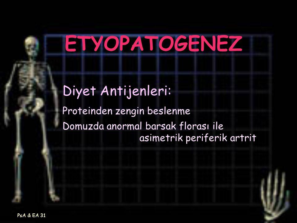 PsA & EA 31 ETYOPATOGENEZ Diyet Antijenleri: Proteinden zengin beslenme Domuzda anormal barsak florası ile asimetrik periferik artrit