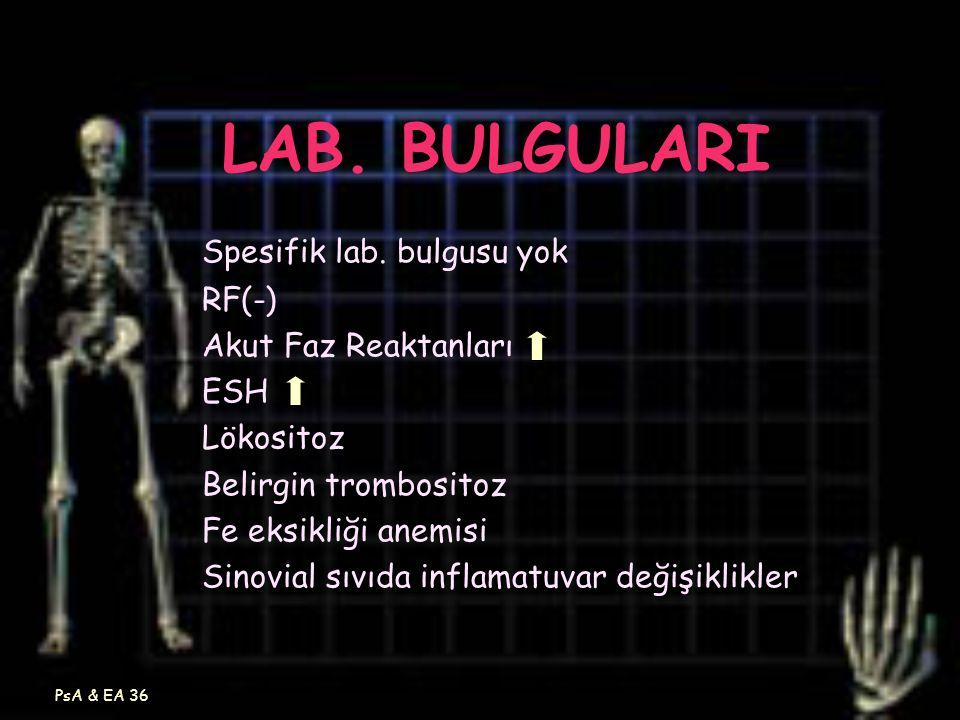PsA & EA 36 LAB. BULGULARI Spesifik lab. bulgusu yok RF(-) Akut Faz Reaktanları ESH Lökositoz Belirgin trombositoz Fe eksikliği anemisi Sinovial sıvıd