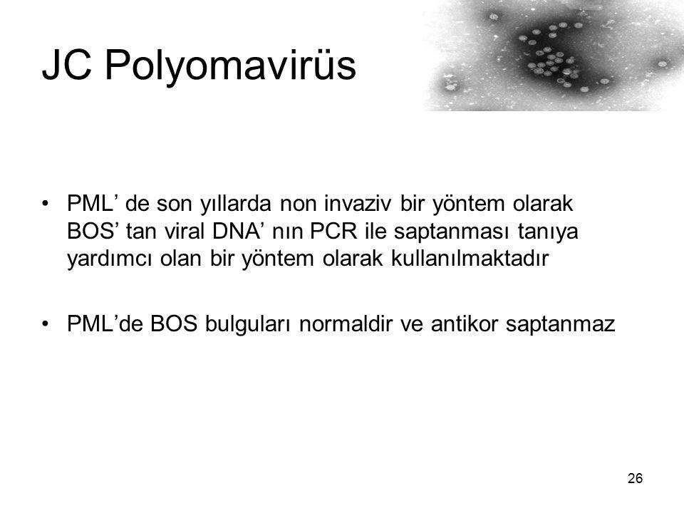 26 JC Polyomavirüs PML' de son yıllarda non invaziv bir yöntem olarak BOS' tan viral DNA' nın PCR ile saptanması tanıya yardımcı olan bir yöntem olara