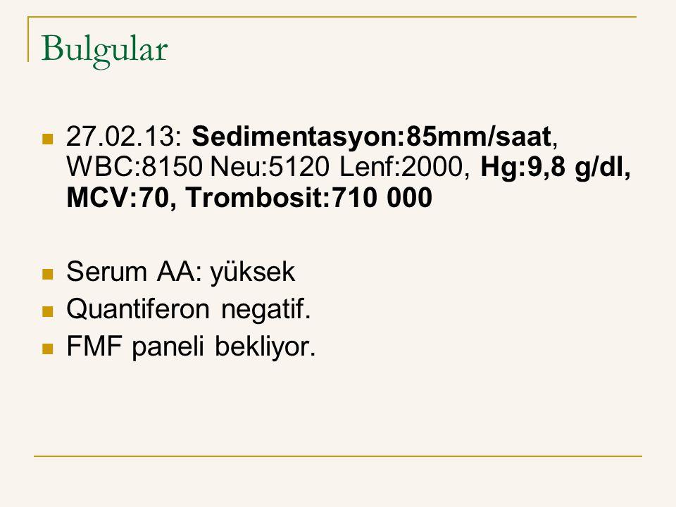 Bulgular 27.02.13: Sedimentasyon:85mm/saat, WBC:8150 Neu:5120 Lenf:2000, Hg:9,8 g/dl, MCV:70, Trombosit:710 000 Serum AA: yüksek Quantiferon negatif.