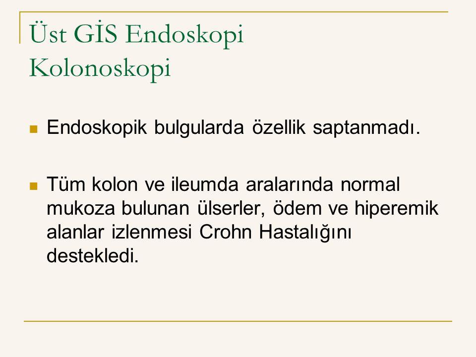 Üst GİS Endoskopi Kolonoskopi Endoskopik bulgularda özellik saptanmadı. Tüm kolon ve ileumda aralarında normal mukoza bulunan ülserler, ödem ve hipere