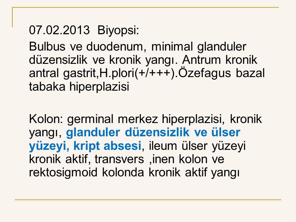 07.02.2013 Biyopsi: Bulbus ve duodenum, minimal glanduler düzensizlik ve kronik yangı. Antrum kronik antral gastrit,H.plori(+/+++).Özefagus bazal taba