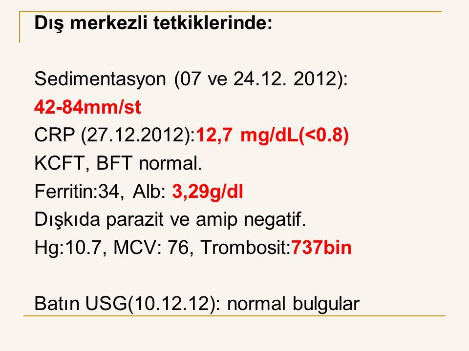 Dış merkezli tetkiklerinde: Sedimentasyon (07 ve 24.12. 2012): 42-84mm/st CRP (27.12.2012):12,7 mg/dL(<0.8) KCFT, BFT normal. Ferritin:34, Alb: 3,29g/