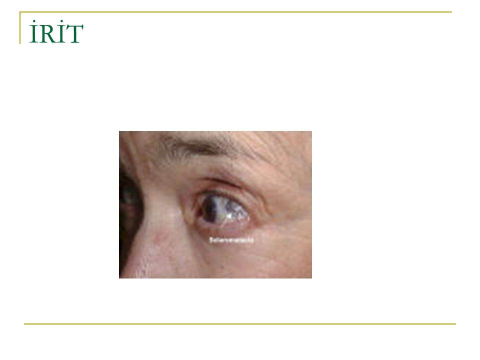 3.İklimTürleri Uygulamalar hastalığın türüne, hastanın yaşına ve durumuna göre planlanır.