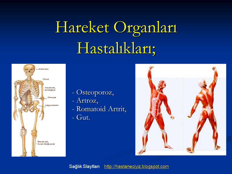 Hareket Organları Hastalıkları; - Osteoporoz, - Artroz, - Romatoid Artrit, - Gut. Sağlık Slaytlarıhttp://hastaneciyiz.blogspot.com