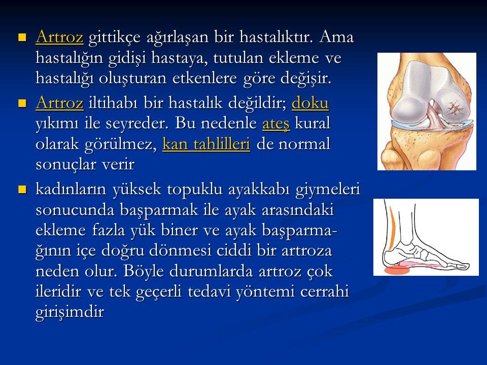 Artroz gittikçe ağırlaşan bir hastalıktır.