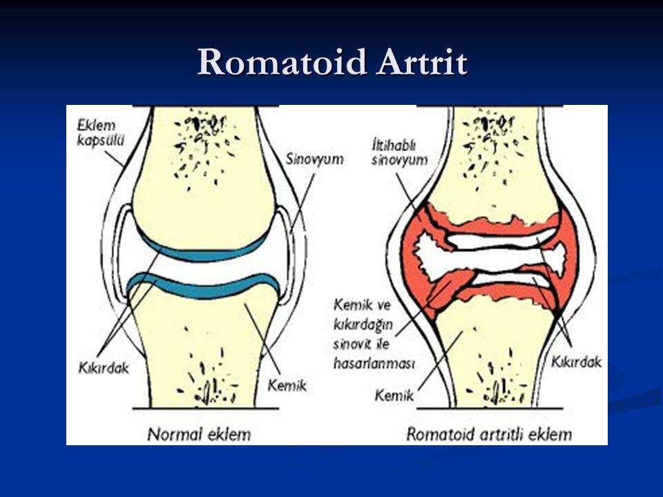 Romatoid Artrit