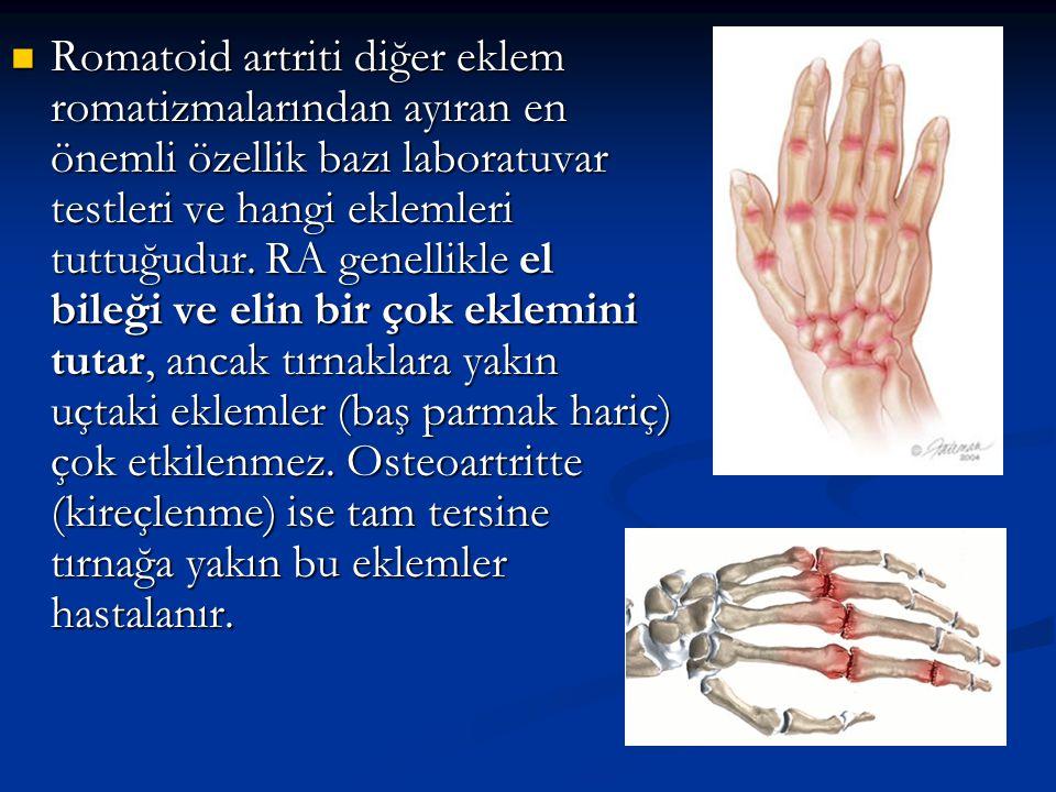Romatoid artriti diğer eklem romatizmalarından ayıran en önemli özellik bazı laboratuvar testleri ve hangi eklemleri tuttuğudur. RA genellikle el bile