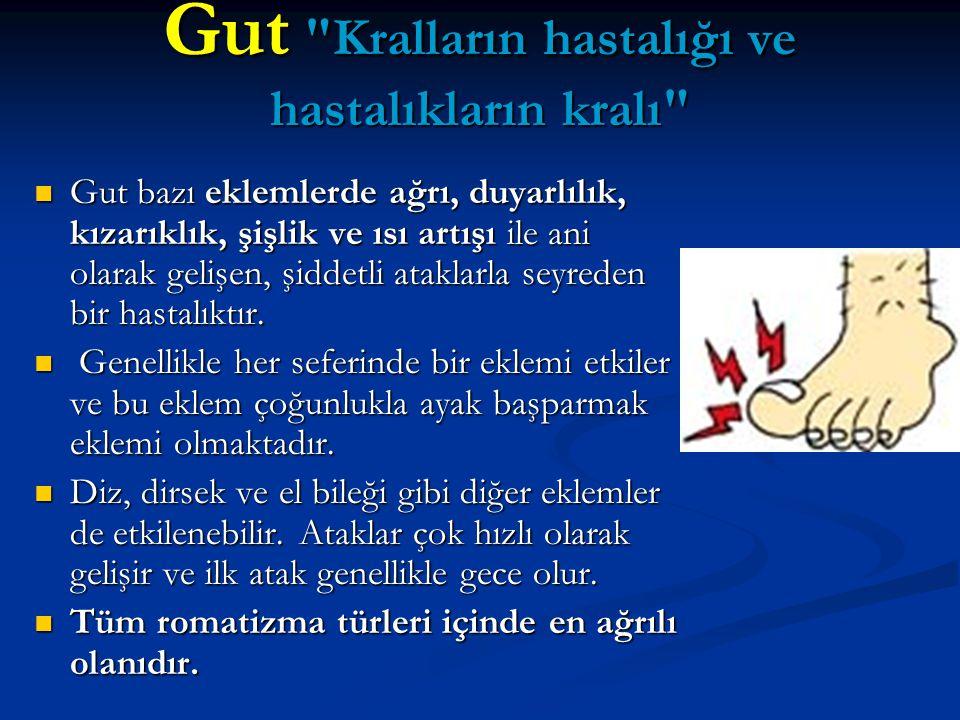 Gut Kralların hastalığı ve hastalıkların kralı Gut bazı eklemlerde ağrı, duyarlılık, kızarıklık, şişlik ve ısı artışı ile ani olarak gelişen, şiddetli ataklarla seyreden bir hastalıktır.