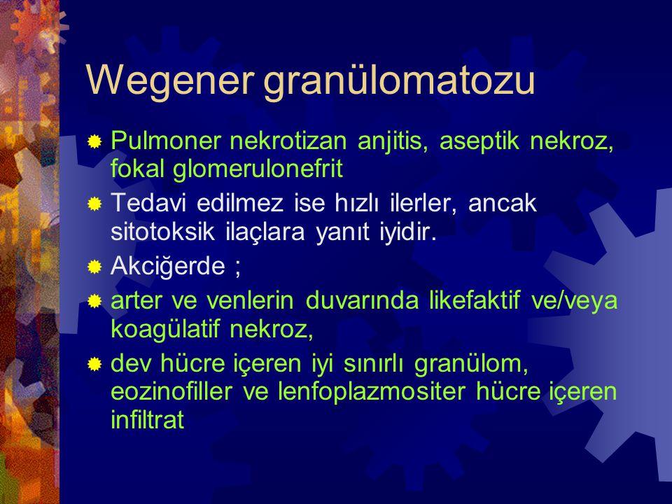 Wegener granülomatozu  Pulmoner nekrotizan anjitis, aseptik nekroz, fokal glomerulonefrit  Tedavi edilmez ise hızlı ilerler, ancak sitotoksik ilaçlara yanıt iyidir.