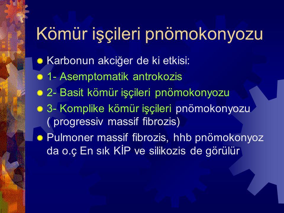 Kömür işçileri pnömokonyozu  Karbonun akciğer de ki etkisi:  1- Asemptomatik antrokozis  2- Basit kömür işçileri pnömokonyozu  3- Komplike kömür işçileri pnömokonyozu ( progressiv massif fibrozis)  Pulmoner massif fibrozis, hhb pnömokonyoz da o.ç En sık KİP ve silikozis de görülür