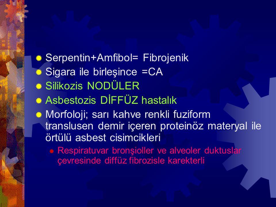  Serpentin+Amfibol= Fibrojenik  Sigara ile birleşince =CA  Silikozis NODÜLER  Asbestozis DİFFÜZ hastalık  Morfoloji; sarı kahve renkli fuziform translusen demir içeren proteinöz materyal ile örtülü asbest cisimcikleri  Respiratuvar bronşioller ve alveoler duktuslar çevresinde diffüz fibrozisle karekterli