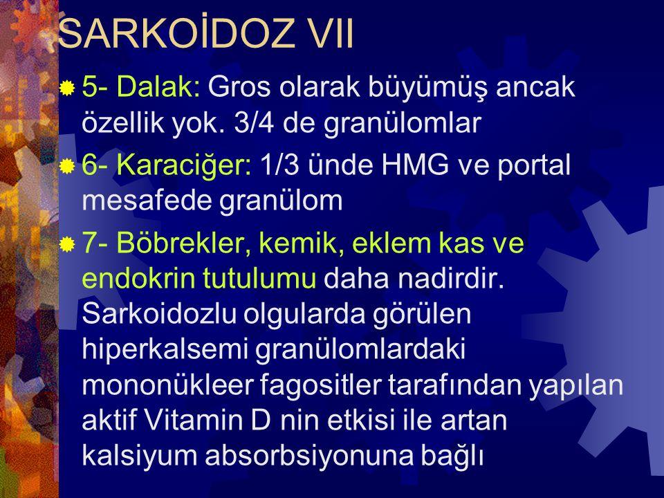 SARKOİDOZ VII  5- Dalak: Gros olarak büyümüş ancak özellik yok.