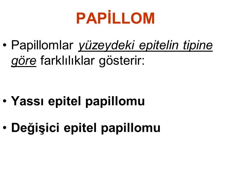 PAPİLLOM Papillomlar yüzeydeki epitelin tipine göre farklılıklar gösterir: Yassı epitel papillomu Değişici epitel papillomu