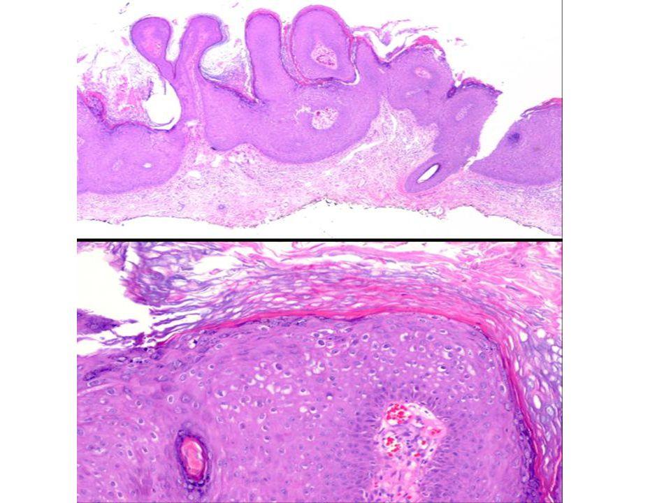 Değişici epitel papillomu Üriner sistemde ve özellikle mesanede Papillomlar daha uzun ve çevre epitele göre daha yüksek Normal değişici epitel ile döşeli, çok sayıda dallanmalar yapan dar stromalı parmaksı tümöral oluşumlar