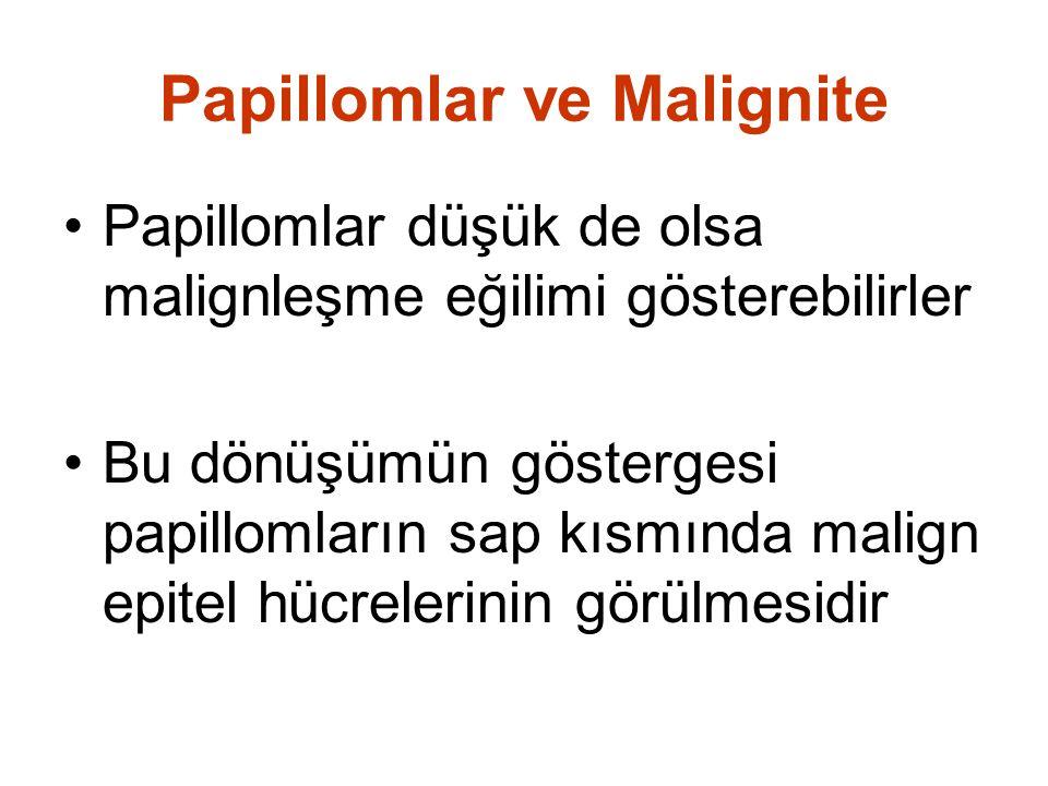 Papillomlar ve Malignite Papillomlar düşük de olsa malignleşme eğilimi gösterebilirler Bu dönüşümün göstergesi papillomların sap kısmında malign epitel hücrelerinin görülmesidir