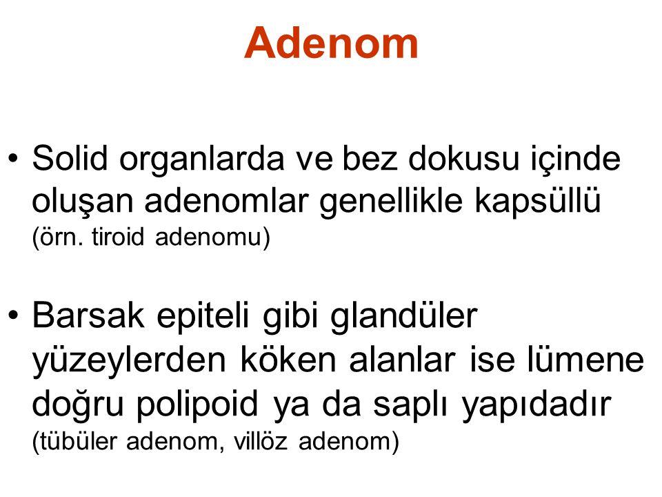 Adenom Solid organlarda ve bez dokusu içinde oluşan adenomlar genellikle kapsüllü (örn.