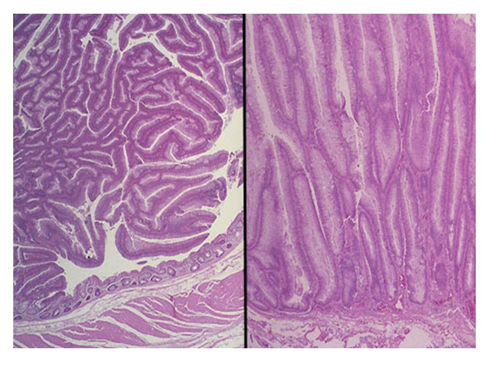 Adenom Bazı adenomlar ise köken aldıkları dokuya benzemeyebilir (örn.