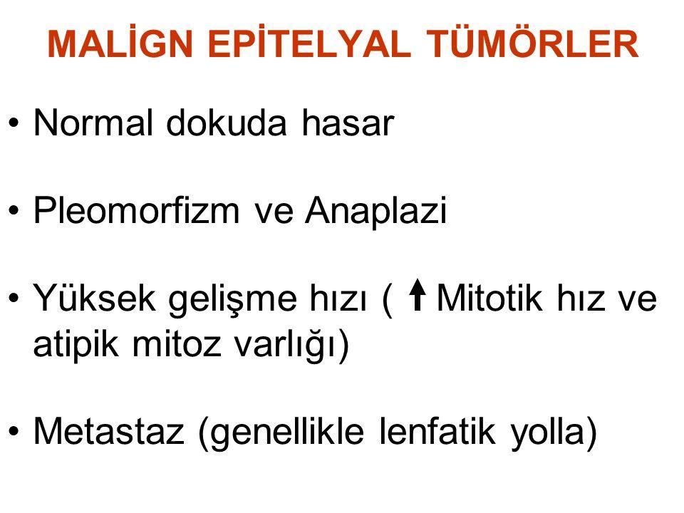 MALİGN EPİTELYAL TÜMÖRLER Normal dokuda hasar Pleomorfizm ve Anaplazi Yüksek gelişme hızı ( Mitotik hız ve atipik mitoz varlığı) Metastaz (genellikle lenfatik yolla)