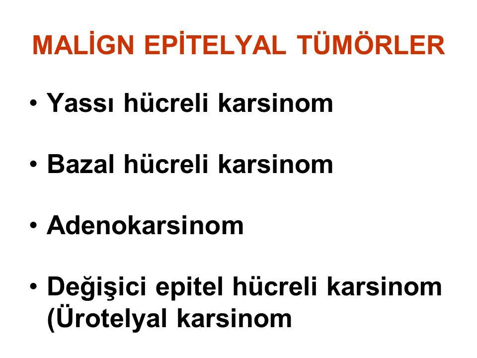 MALİGN EPİTELYAL TÜMÖRLER Yassı hücreli karsinom Bazal hücreli karsinom Adenokarsinom Değişici epitel hücreli karsinom (Ürotelyal karsinom