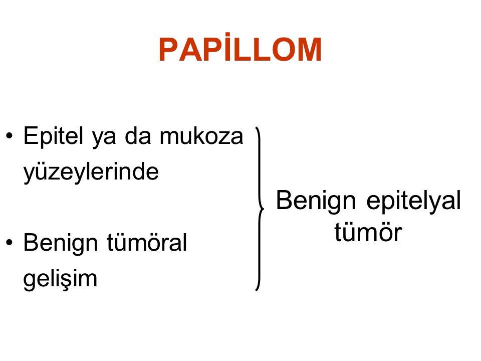 PAPİLLOM Epitel ya da mukoza yüzeylerinde Benign tümöral gelişim Benign epitelyal tümör